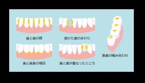 shikoujyokyo01